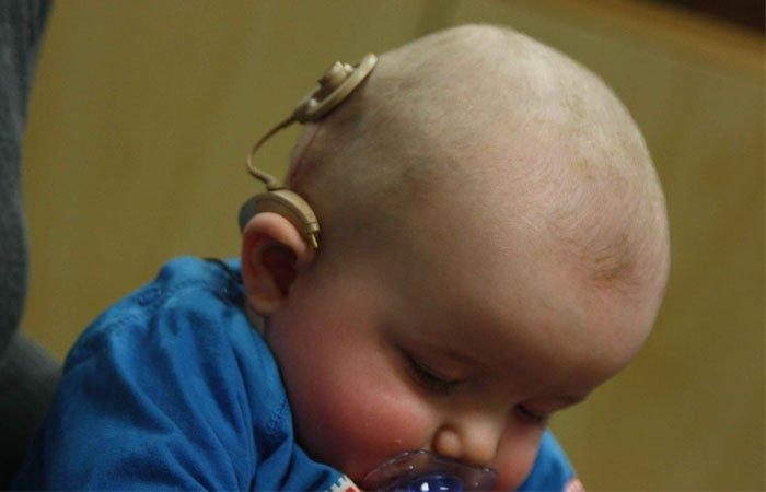 infant hearing impairment essay